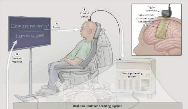 AI-based system for decoding speech in a paralyzed person with anarthria/Image credit to New England Journal of Medicine and UCSF